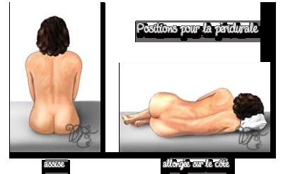 Positions pour la péridurale